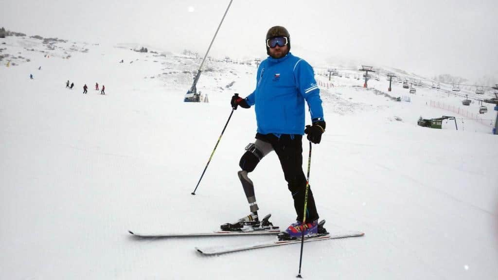 Lower limb Amputee on skii slope with skiis and other skiing gear.